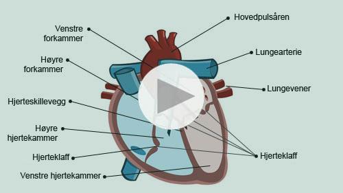 blodpropp i hjertet symptomer
