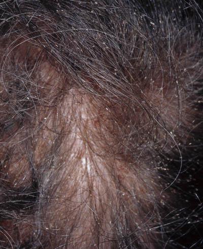 fjerne lus fra håret