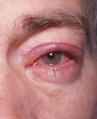 Herpes tegn på Herpes simplex