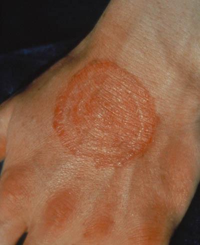 Ekstremt tørr hud på leggene