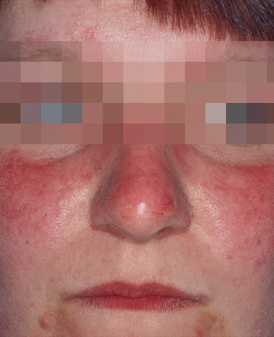 rosacea behandling laser